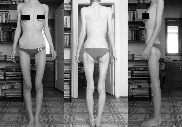 3000 способов похудеть