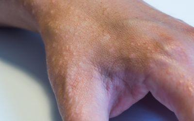 Раздражающий контактный дерматит (ИКД) представляет собой неспецифический неаллергический ответ кожи на прямое химическое повреждение от коррозийного агента, который высвобождает медиаторы воспаления преимущественно из эпидермальных клеток.