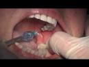 Местная анестезия для специалистов стоматологов (Наглядно показана анестезия по Гоу-Гейтсу)