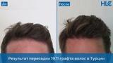 Пересадка 1971 графта волос - Результат через 11 месяцев - Клиника HLC в Турции
