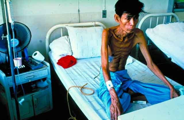 Какие признаки у туберкулеза?