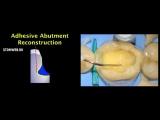 Непрямые композитные реставрации во фронтальном отделе - восстановление культи зуба.