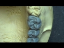 Live wax up - Upper posterior br. (occlusion) (1)