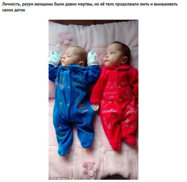 В Бразилии врачи 123 дня поддерживали жизнь в теле беременной женщины, чтобы дать её детям шанс появиться на свет.