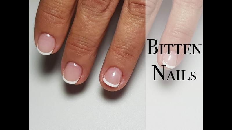 Bitten nails Problem cuticle