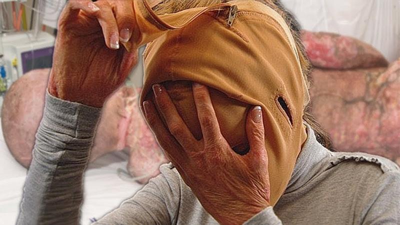 Die Leute staunten nicht schlecht als diese Frau nach 3 Jahren ihr Gesicht enthüllte