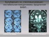 Лечение и мониторинг при операциях на опухолях головного мозга Савин И.А.