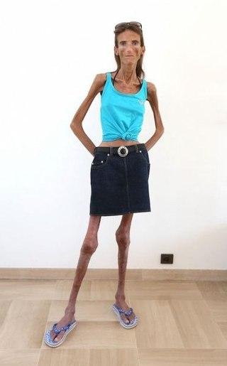 самый худой в мире человек фото