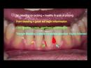 Оценка кровоточивости десен