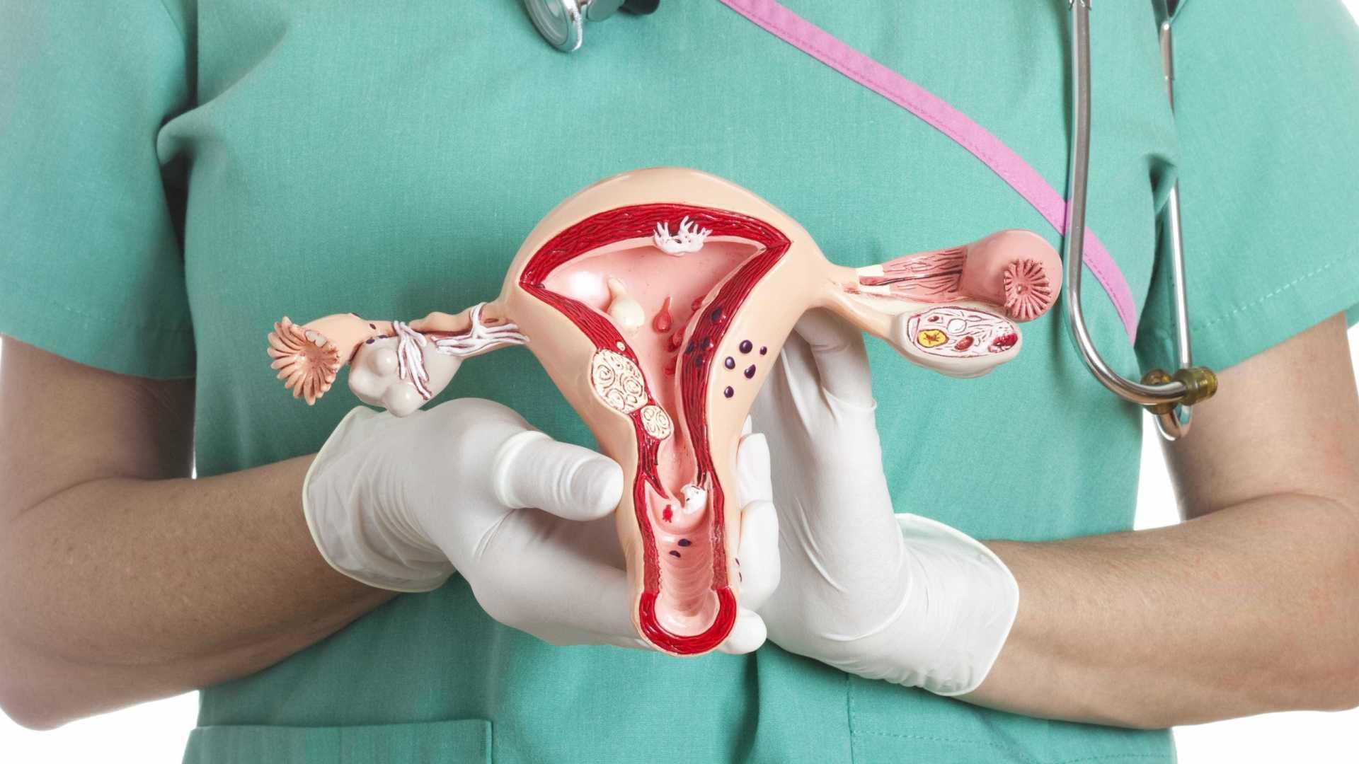 Признаки гипоплазии яичников у женщины