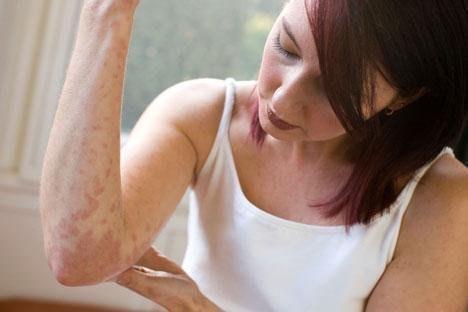 Псориаз — это ненормальная реакция организма на внешние раздражители, при которой на отдельных участках тела верхний слой кожи отмирает гораздо быстрее, чем в норме. Если обычно цикл деления и созревания клеток кожи происходит за 3-4 недели, то при псориа