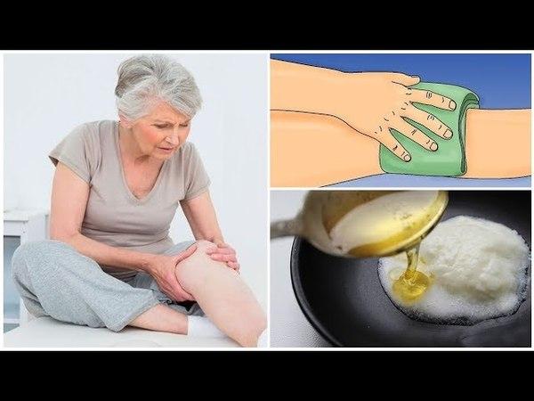 ✅Аспириновый мёд от боли в коленях. Супер средство от суставной боли!