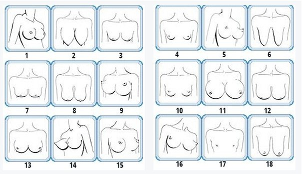 Фото типы женской груди фото 35-548