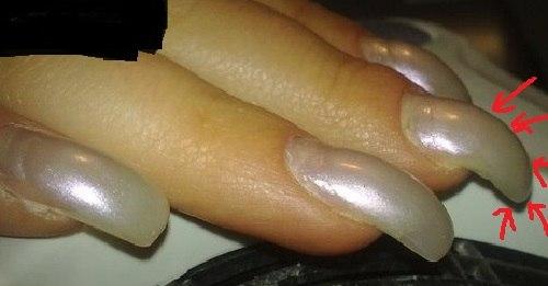 Почему ногти загибаются вниз