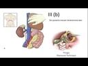 Nephrectomy wirh inferior CAVATOMY and THROMBECTOMY IIIb level