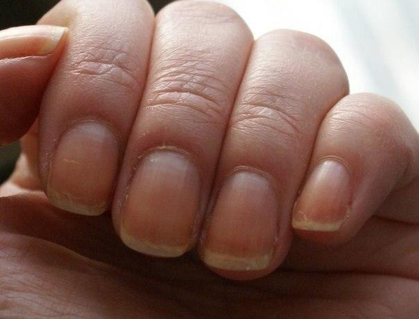 Домашние советы от ломких ногтей