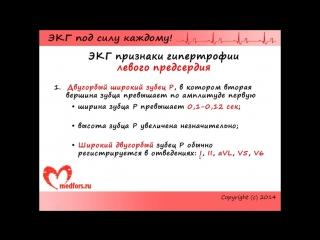 Лекция 8. Пропедевтика внутренних болезней. ЭКГ