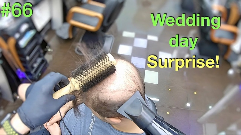 Wedding Day Surprise Wife Won't Recognize Him Hairstyle for Men Hair Building Fibers 2019