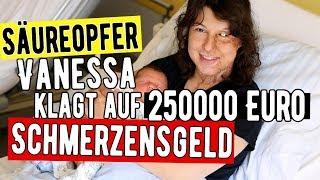 Säureopfer Vanessa kämpft sich ins Leben zurück