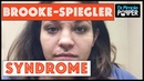 General Dermatology - treating a patient with Brooke Spiegler syndrome, bumps on the face