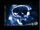 Spaceballs - Distortion (Amiga Demo) (1999)