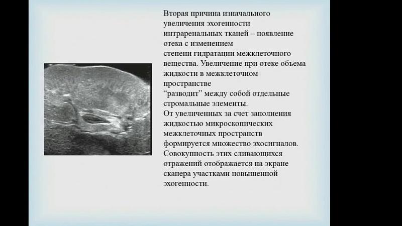 Столова Э Н Ультразвуковые особенности при рецидивирующих воспалительных заболеваниях почек