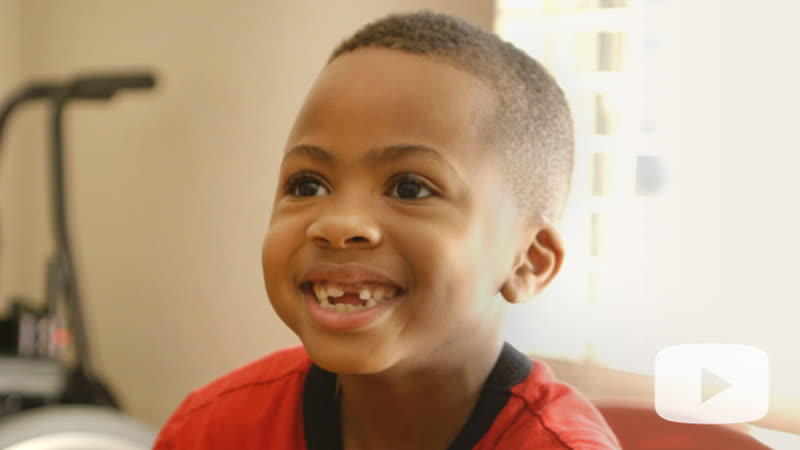First Bilateral Hand Transplant in a Child Zions Story