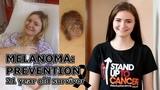 Melanoma at 20: Skin Cancer Prevention  ♥  McInHeather