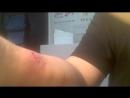 Как зашить на себе рану
