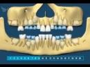 Как растут зубы у человека