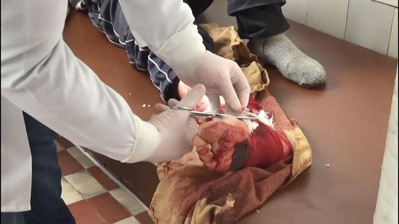 Мирный житель получил ранения в результате обстрела н п Донецкий Опубликовано 18 февр 2019 г