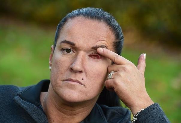 Бойфренд так ударил бывшую молотком, что у нее вылетел глаз 41-летняя жительница британского города Ливерпуль, Рут Морган, встречалась со своим соседом, 43-летним Мартином Брауном, но спустя