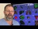 Вздутие живота, газообразование, газы в кишечнике, метеоризм Причины и скорая с ...