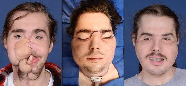 Выстрелившему себе в подбородок суициднику досталось лицо 23-летнего парня 26-летнему Кэмерону, который выжил после выстрела в подбородок, досталась физиономия 23-летнего донора, страдавшего от