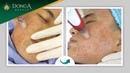 Cận cảnh quá trình lăn kim trị mụn tại TMV Đông Á