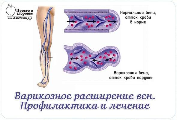 Мази для лечения вен на ногах