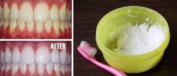Чем отбеливание зубов в домашних условиях самый лучший способ 66