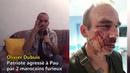 Témoignage : camarade Olivier Dubuis et sa compagne, violentés par 2 maghrébins - Conversano