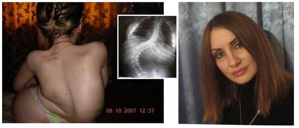 картинки горбатых людей
