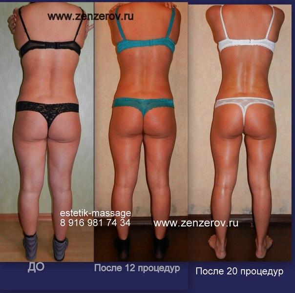 баночный массаж до и после фото