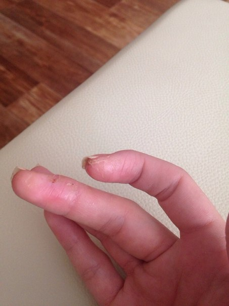 аллергия после гель лака фото