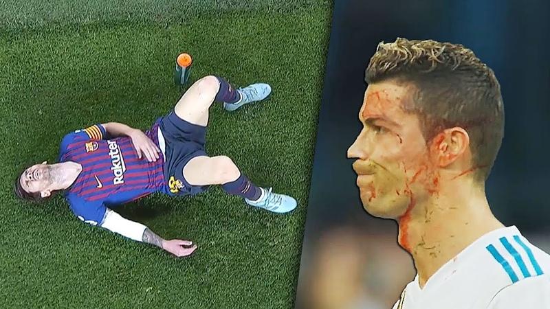 Lionel Messi, C Ronaldo, Neymar Horror Injuries Tackles
