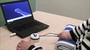 Osseo neuromuscular interface for below elbow amputations e OPRA