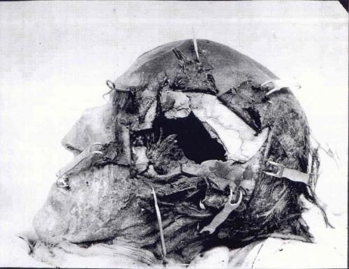 Король Швеции и его голова. Голова короля Швеции и способного полководца Карла XII (1682-1718) с дырой от смертельной пули, полученной при осаде крепости Фредрикстен в Норвегии. Это тот самый