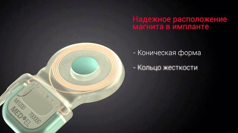 Новый кохлеарный имплант SYNCHRONY от MED-EL
