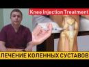 Knee Injection Treatment Внутрисуставные инъекции в коленный сустав