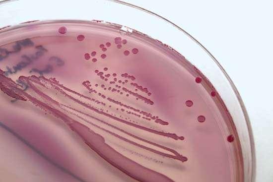 Escherichia coli и другие организмы, которые вызывают инфекции мочевыводящих путей, могут быть выделены и идентифицированы из образцов мочи с использованием лабораторных методов культивирования.