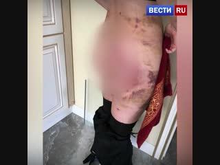В Екатеринбурге женщина после пластики едва не лишилась груди и ягодиц