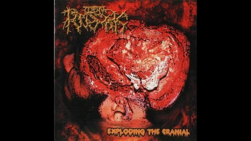 Total Rusak - Exploding the Cranial (2002) HQ Full Album