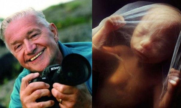Фотограф Леннарт Нильсон потратил 10 лет жизни на то, чтобы снять эволюцию эмбриона от зачатия до рождения 😯